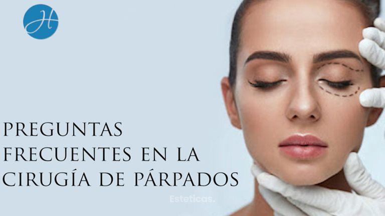 Preguntas y respuestas sobre cirugía de párpados - Dr. Honorio Labaronnie
