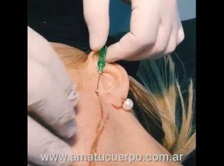 Hilos tensores faciales - Dr. Víctor Armesto