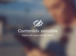 Rinoplastia - Clínica Lopez Vargas