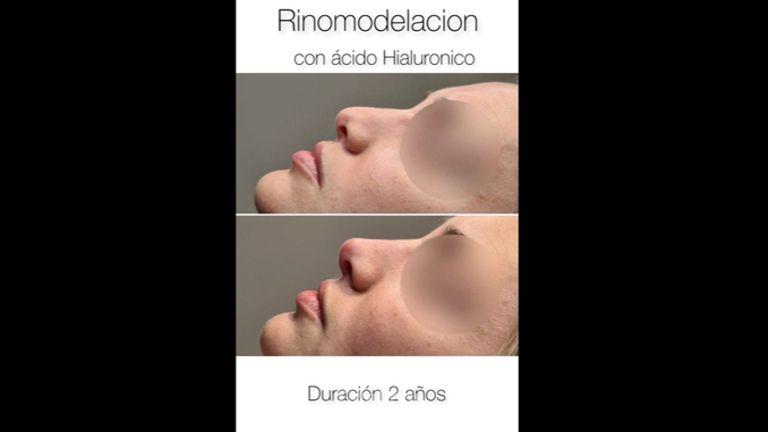 Rinomodelación - Dr Luis Corrales