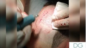 Definición de implante capilar