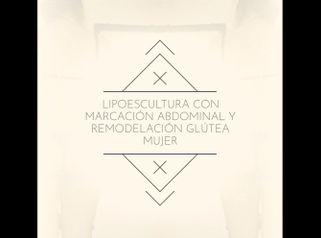 Lipoescultura - Dr. Damián Galeazzo