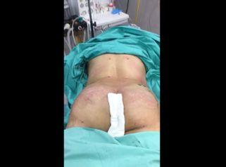 Liposucción - Dr. Emmanuel Manavela Chiapero